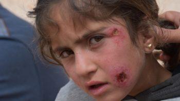 Permalink auf:Hilfsappell für die medizinische Versorgung der Afrin-Flüchtlinge in Camps in dem Gebiet Sehba und Şêrawa